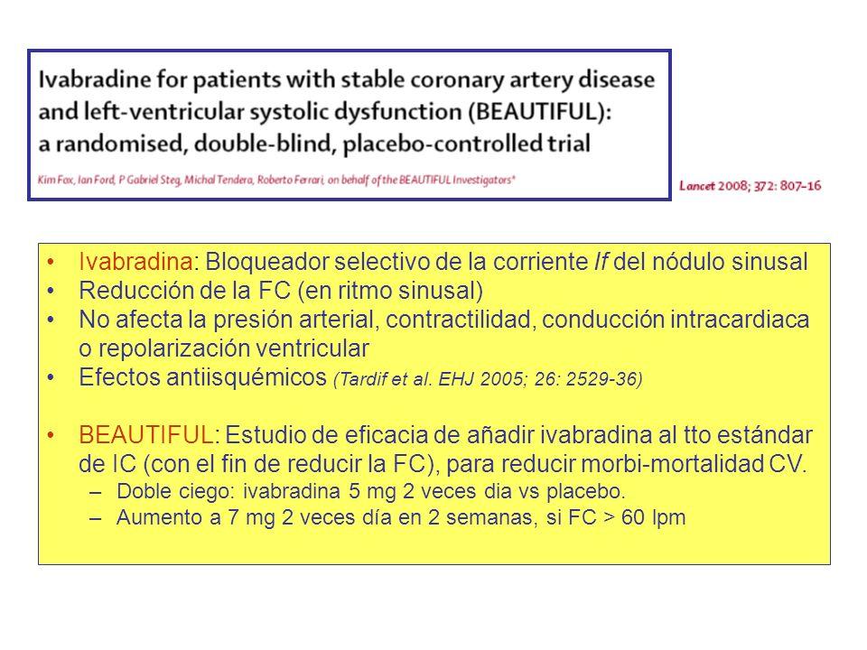 Ivabradina: Bloqueador selectivo de la corriente If del nódulo sinusal