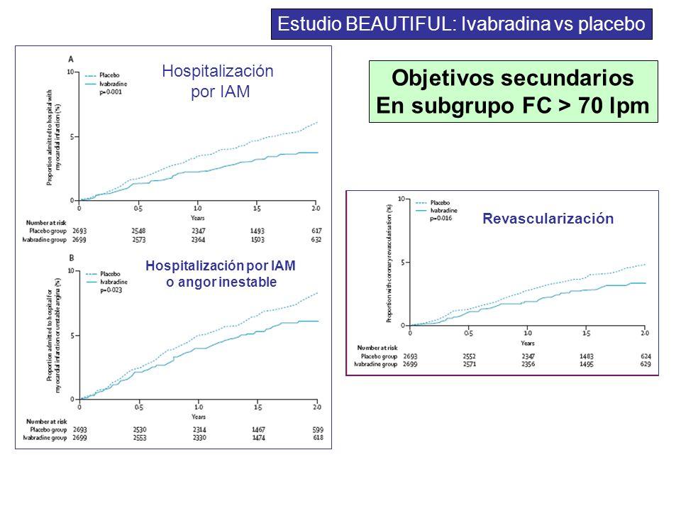 Objetivos secundarios Hospitalización por IAM