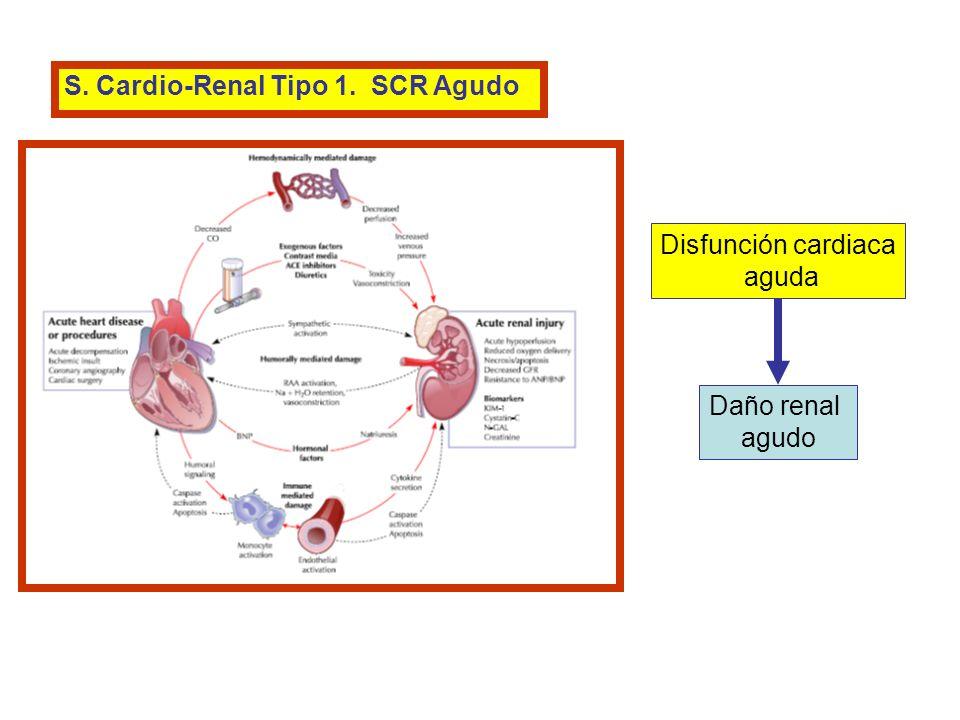 S. Cardio-Renal Tipo 1. SCR Agudo