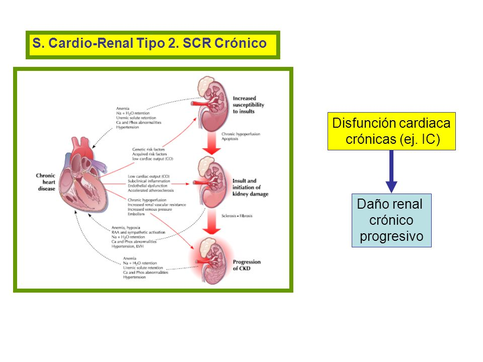 S. Cardio-Renal Tipo 2. SCR Crónico
