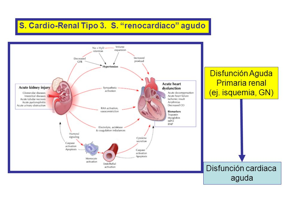 S. Cardio-Renal Tipo 3. S. renocardiaco agudo