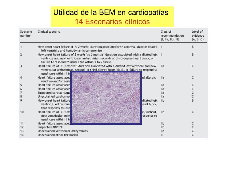 Utilidad de la BEM en cardiopatías