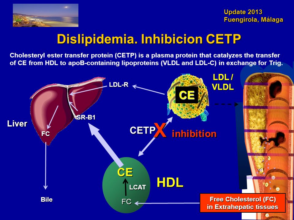 Dislipidemia. Inhibicion CETP