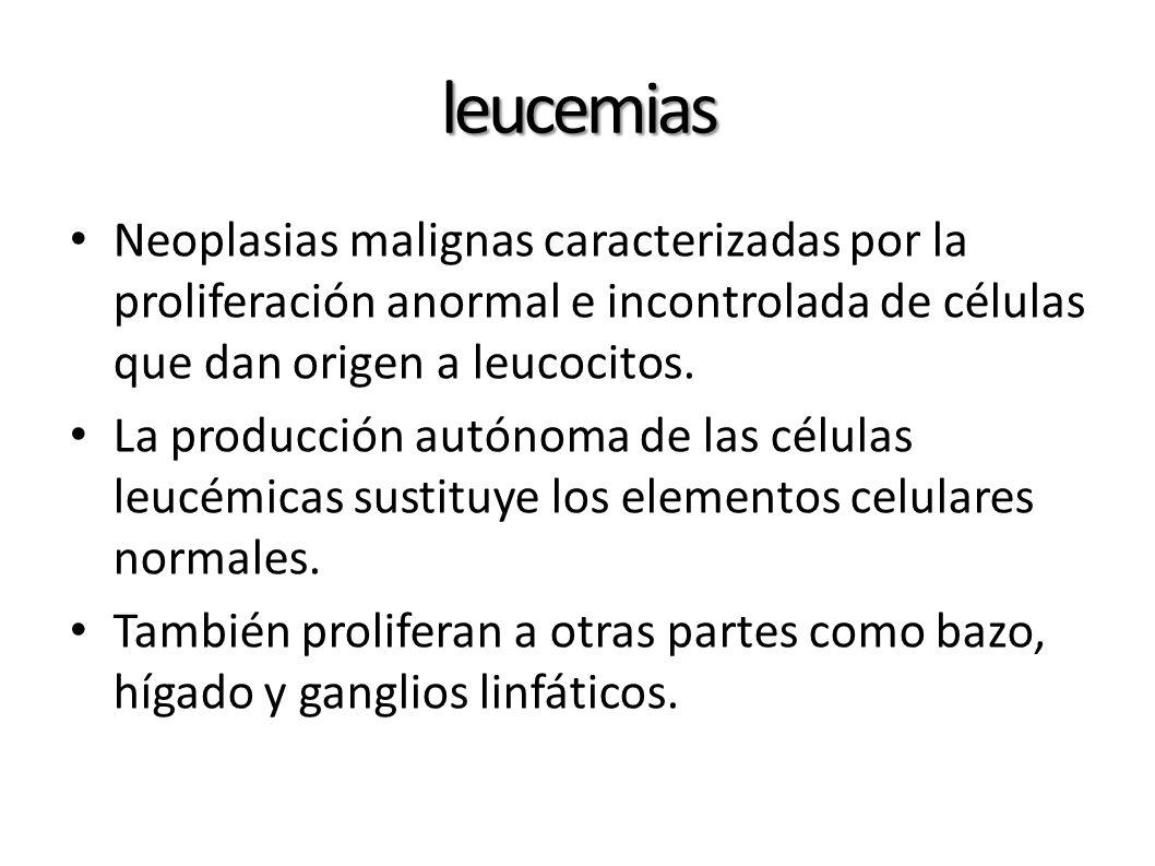 leucemias Neoplasias malignas caracterizadas por la proliferación anormal e incontrolada de células que dan origen a leucocitos.