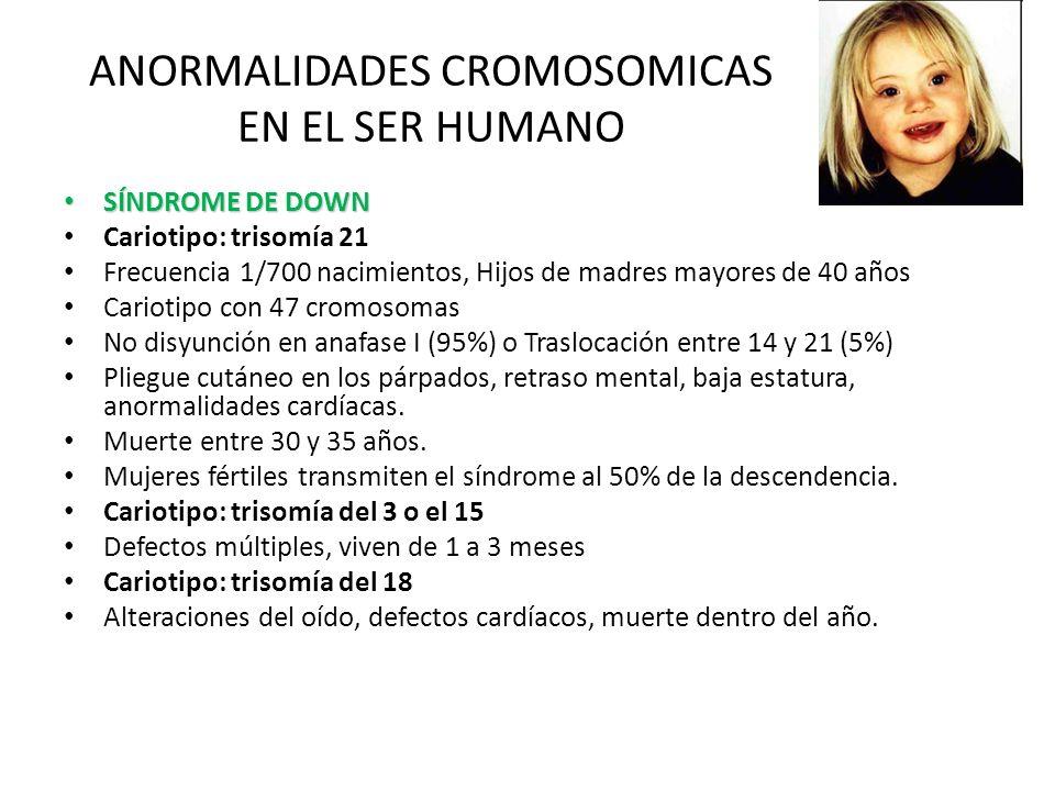 ANORMALIDADES CROMOSOMICAS EN EL SER HUMANO