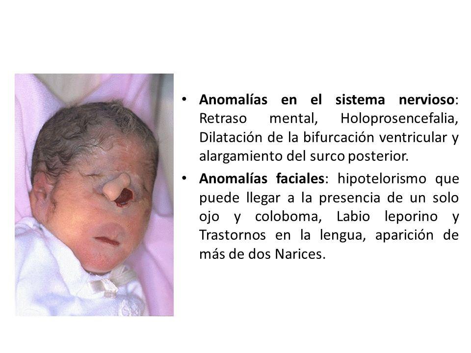Anomalías en el sistema nervioso: Retraso mental, Holoprosencefalia, Dilatación de la bifurcación ventricular y alargamiento del surco posterior.
