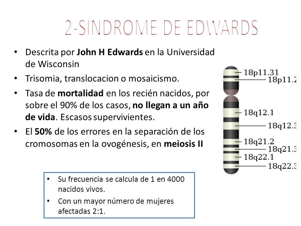 2-SINDROME DE EDWARDS Descrita por John H Edwards en la Universidad de Wisconsin. Trisomia, translocacion o mosaicismo.