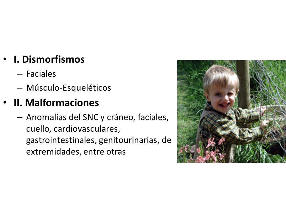I. Dismorfismos II. Malformaciones Faciales Músculo-Esqueléticos