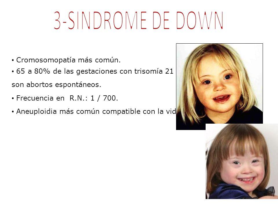 3-SINDROME DE DOWN Cromosomopatía más común.
