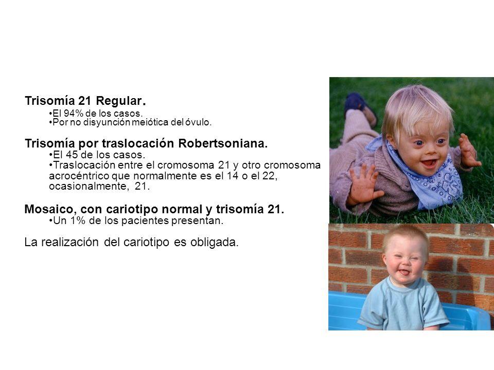 Trisomía por traslocación Robertsoniana.