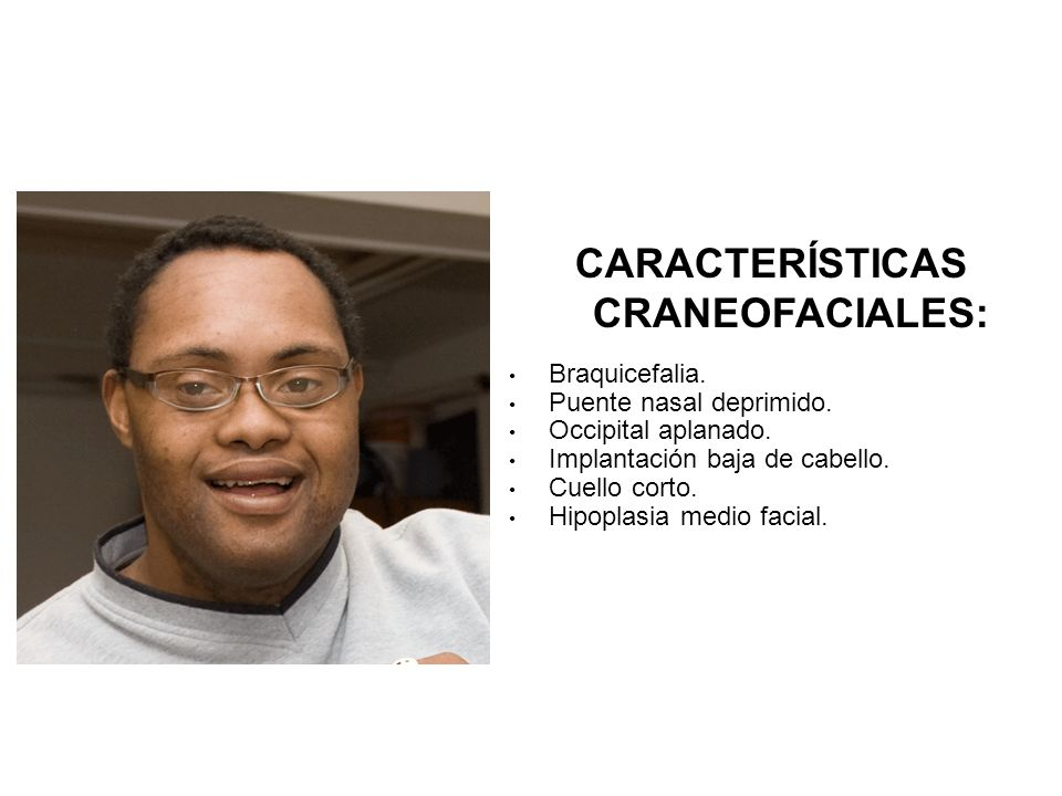 CARACTERÍSTICAS CRANEOFACIALES: