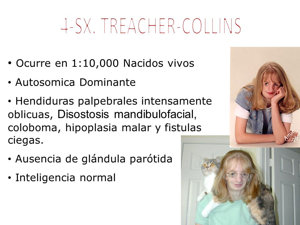 4-SX. TREACHER-COLLINS Ocurre en 1:10,000 Nacidos vivos