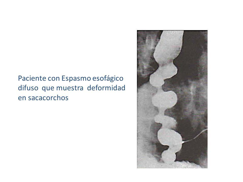 Paciente con Espasmo esofágico difuso que muestra deformidad en sacacorchos