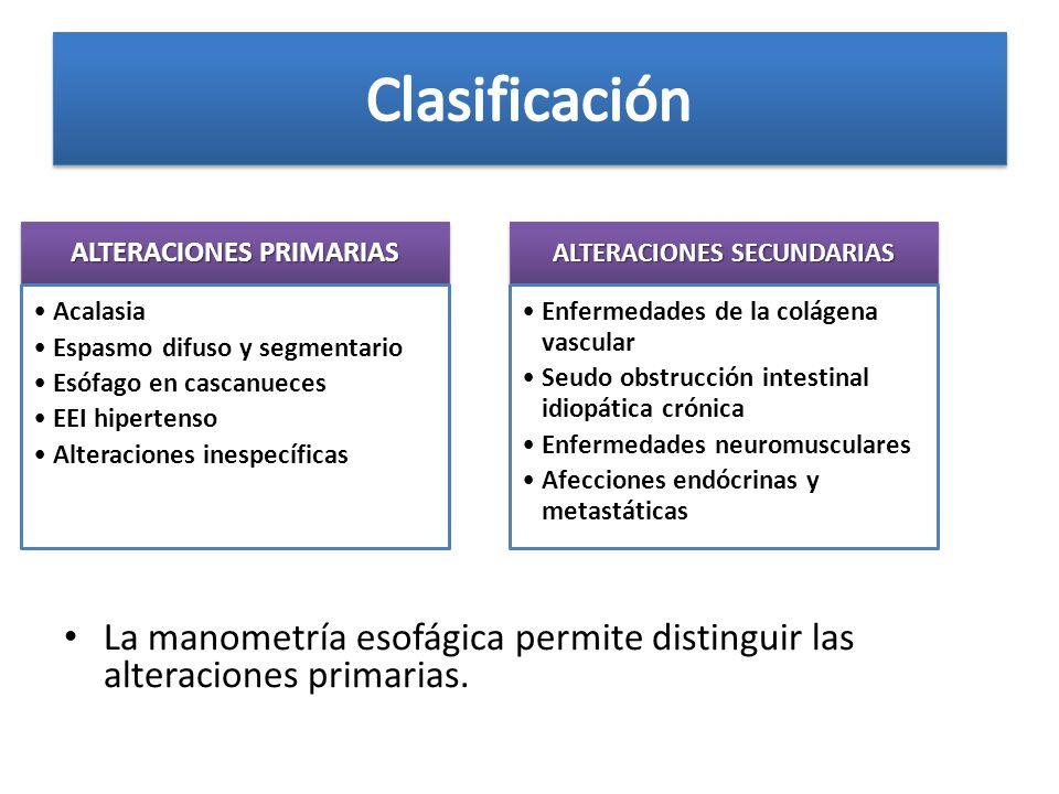 ALTERACIONES PRIMARIAS ALTERACIONES SECUNDARIAS