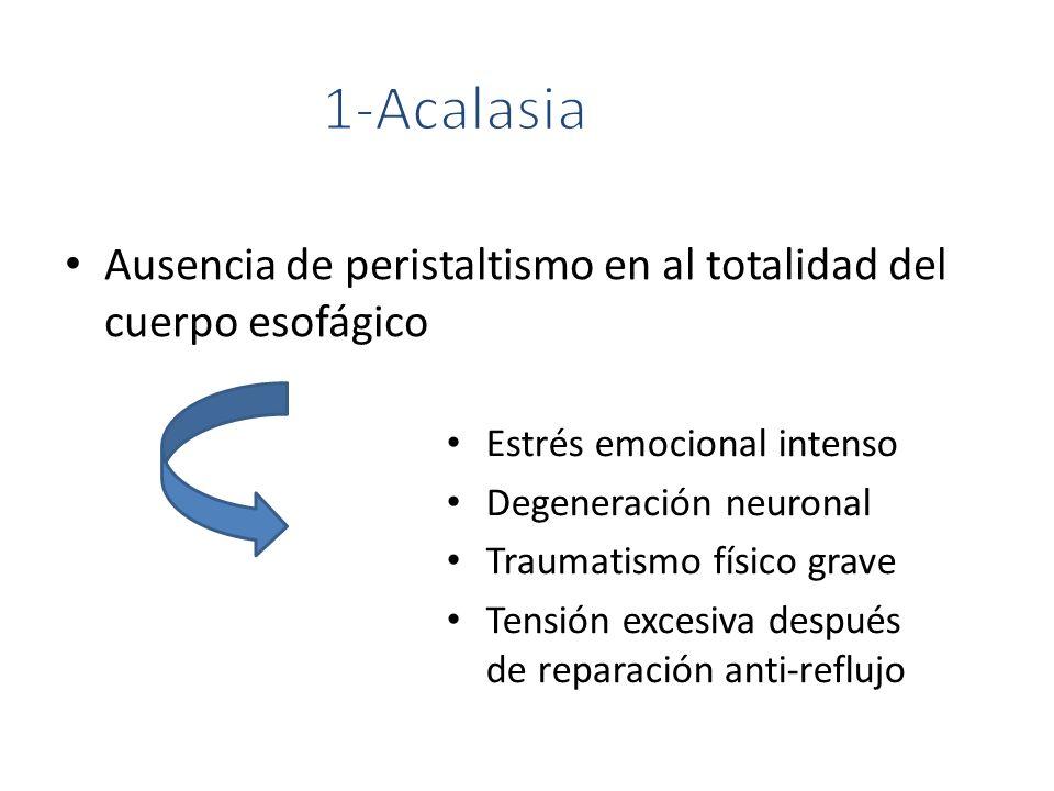 1-Acalasia Ausencia de peristaltismo en al totalidad del cuerpo esofágico. Estrés emocional intenso.