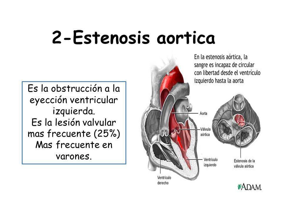 2-Estenosis aortica Es la obstrucción a la eyección ventricular izquierda. Es la lesión valvular mas frecuente (25%)