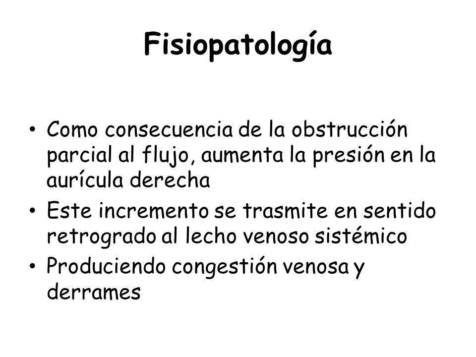 Fisiopatología Como consecuencia de la obstrucción parcial al flujo, aumenta la presión en la aurícula derecha.