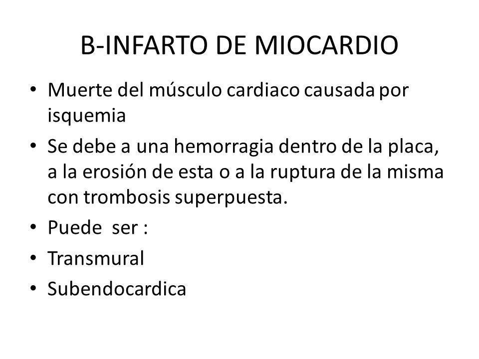 B-INFARTO DE MIOCARDIO