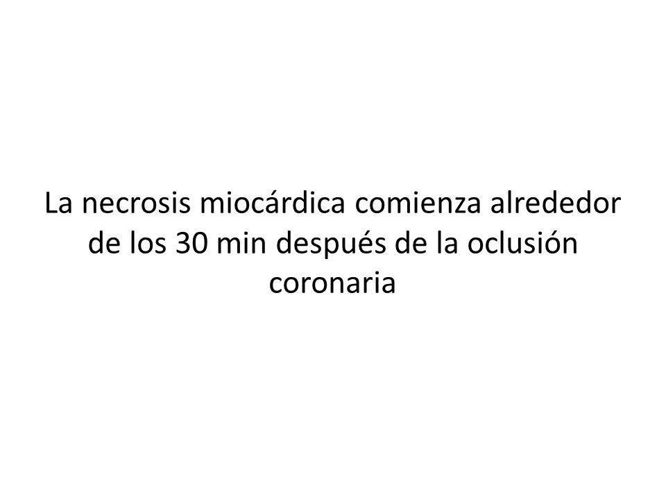 La necrosis miocárdica comienza alrededor de los 30 min después de la oclusión coronaria