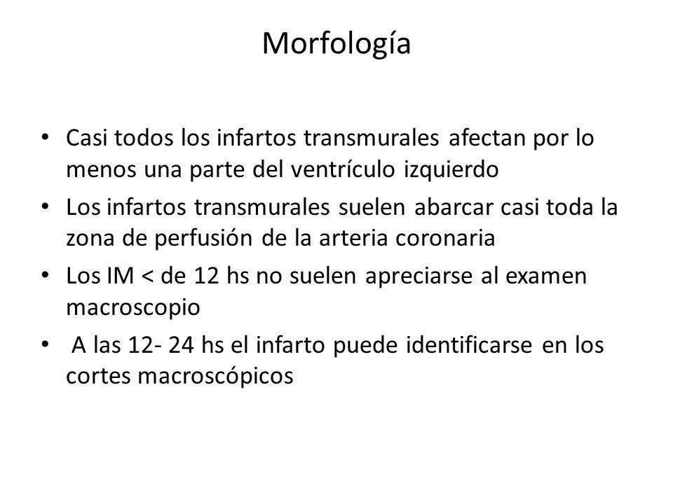 MorfologíaCasi todos los infartos transmurales afectan por lo menos una parte del ventrículo izquierdo.