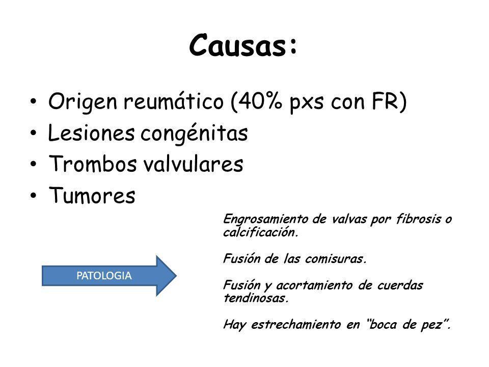 Causas: Origen reumático (40% pxs con FR) Lesiones congénitas
