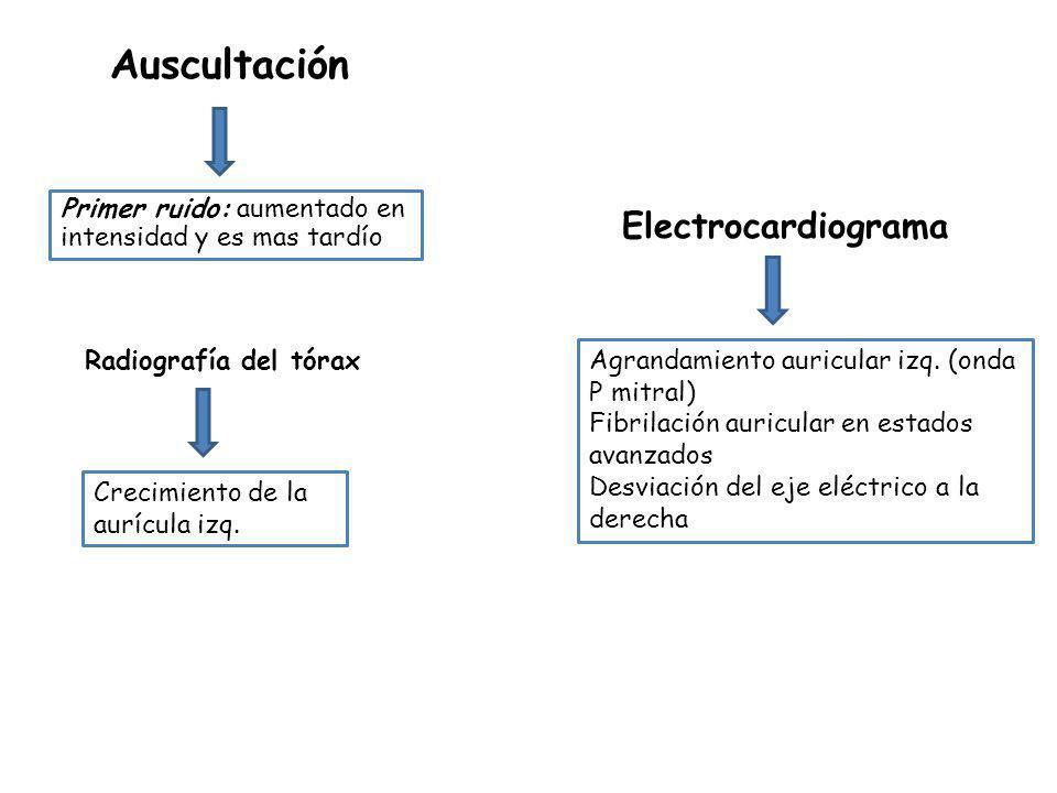 Auscultación Electrocardiograma