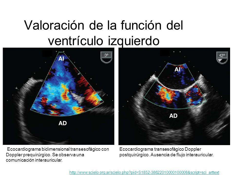 Valoración de la función del ventrículo izquierdo