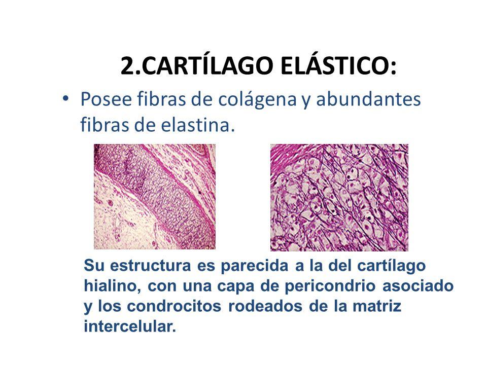 2.CARTÍLAGO ELÁSTICO: Posee fibras de colágena y abundantes fibras de elastina.