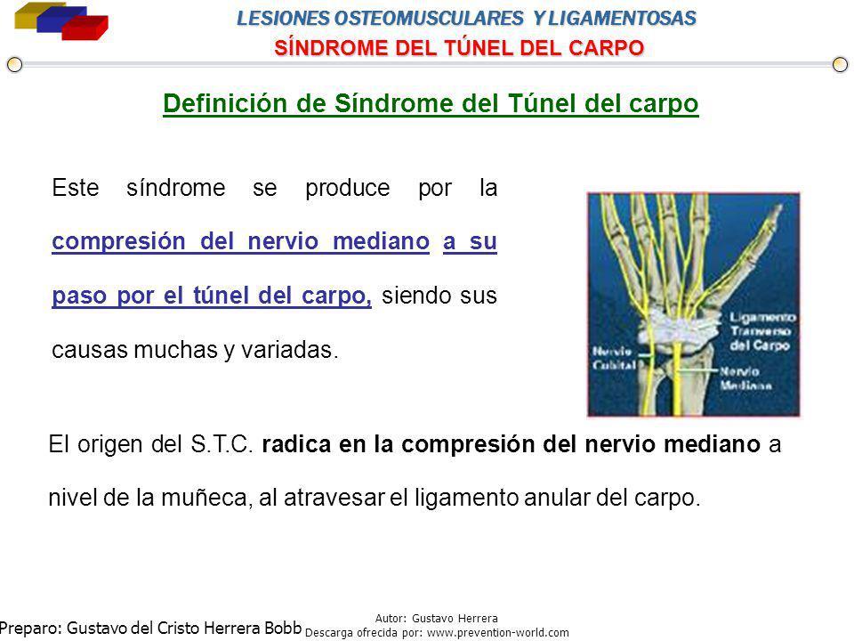 Definición de Síndrome del Túnel del carpo