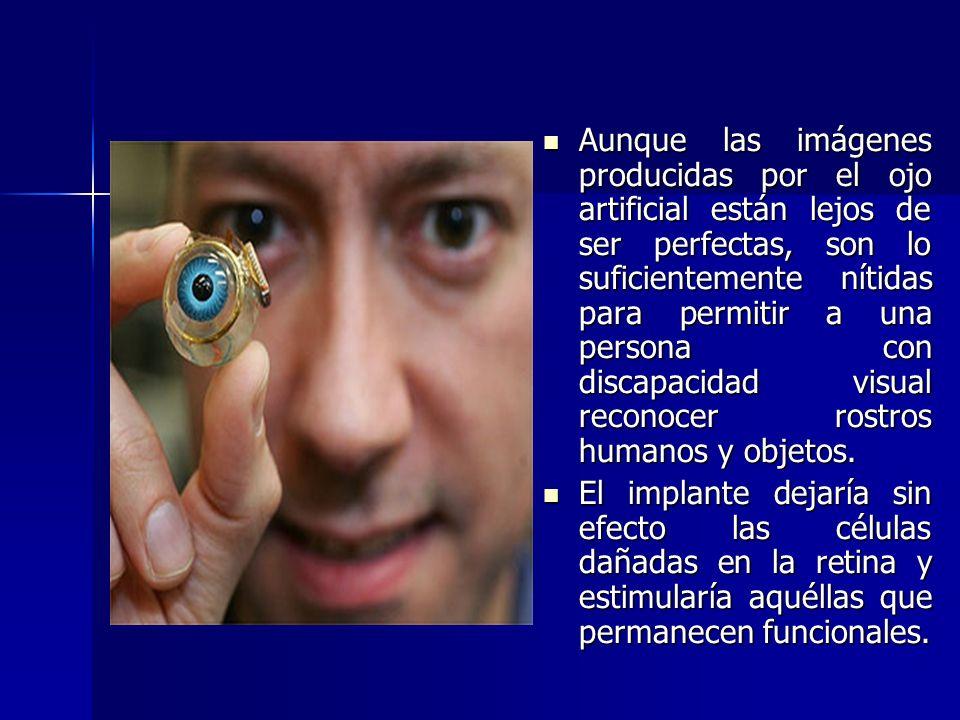 Aunque las imágenes producidas por el ojo artificial están lejos de ser perfectas, son lo suficientemente nítidas para permitir a una persona con discapacidad visual reconocer rostros humanos y objetos.
