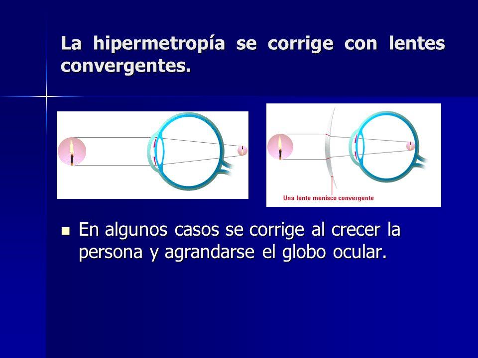 La hipermetropía se corrige con lentes convergentes.