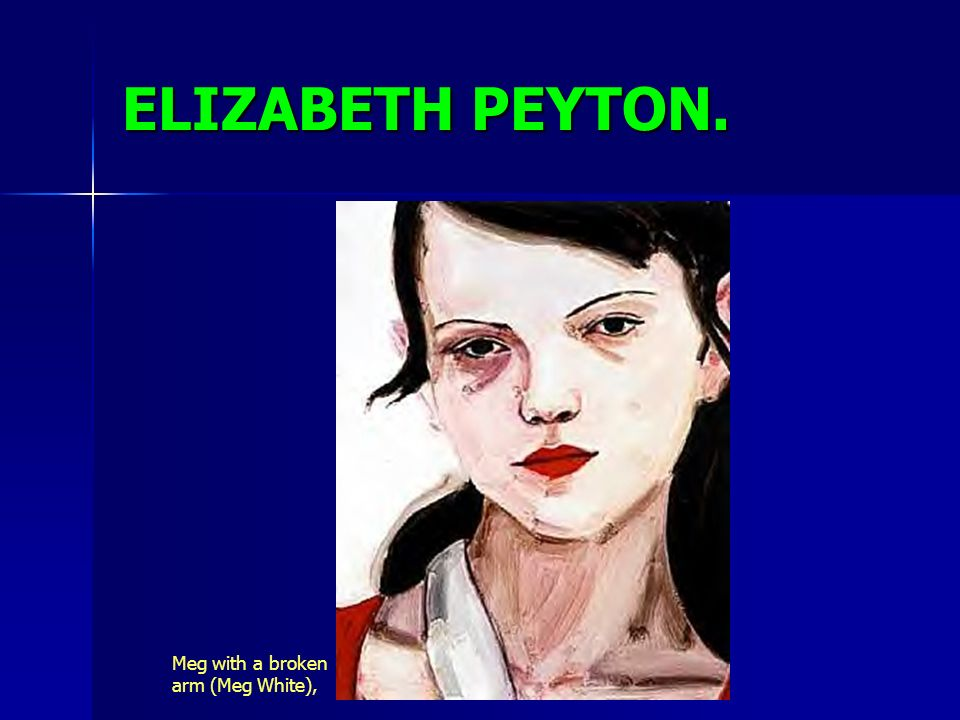 ELIZABETH PEYTON. Meg with a broken arm (Meg White),