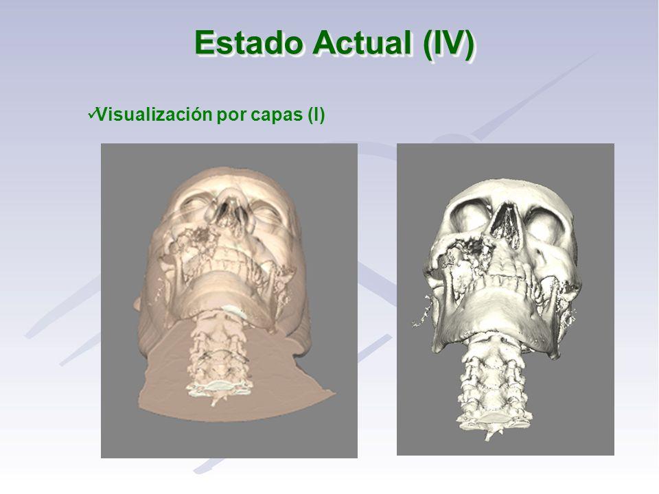 Visualización por capas (I)