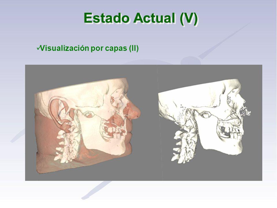 Visualización por capas (II)