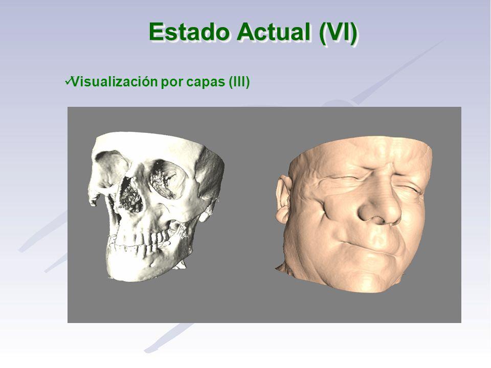 Visualización por capas (III)