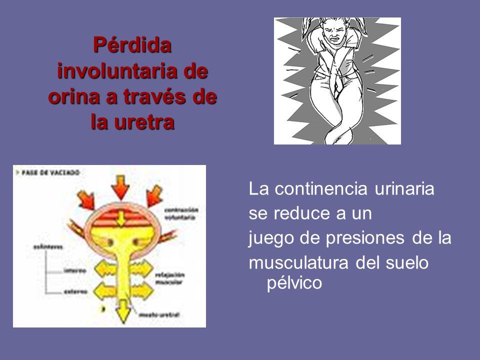 Pérdida involuntaria de orina a través de la uretra