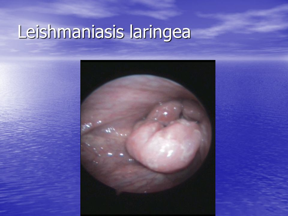 Leishmaniasis laringea