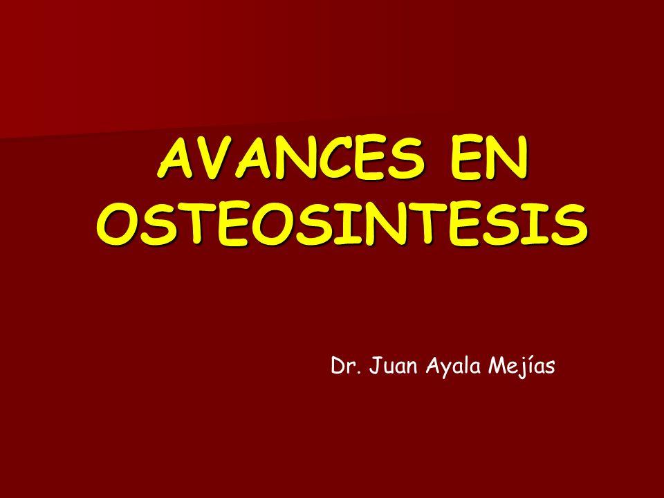 AVANCES EN OSTEOSINTESIS