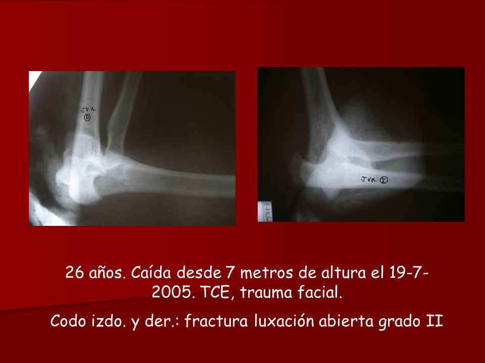 Codo izdo. y der.: fractura luxación abierta grado II
