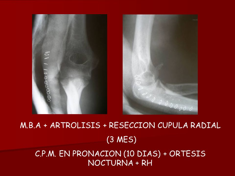 M.B.A + ARTROLISIS + RESECCION CUPULA RADIAL (3 MES)