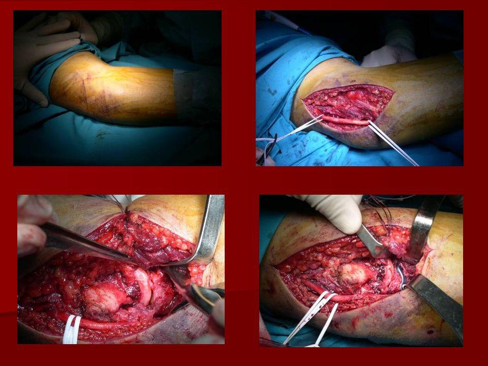 22-11-06 Exploración BA: codo inestable con importante apertura en valgo y subluxación humero-cubital