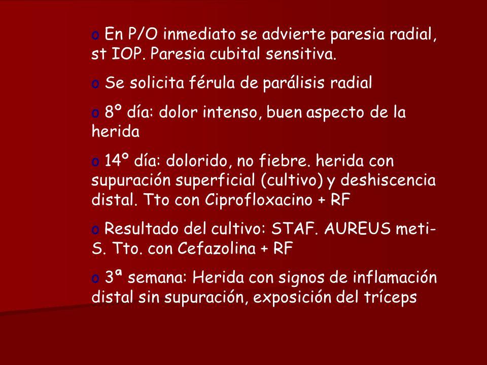 En P/O inmediato se advierte paresia radial, st IOP