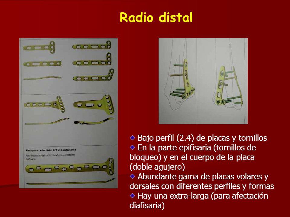 Radio distal Bajo perfil (2.4) de placas y tornillos