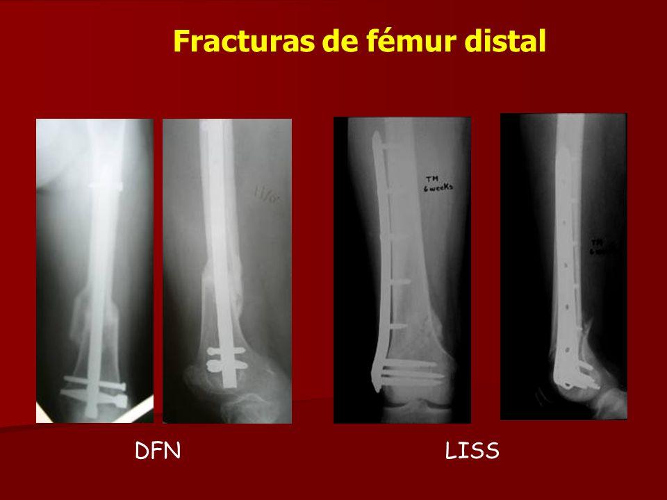 Fracturas de fémur distal