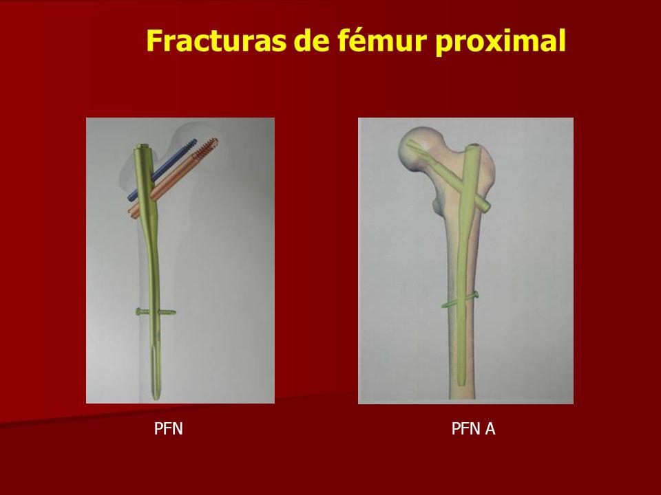 Fracturas de fémur proximal