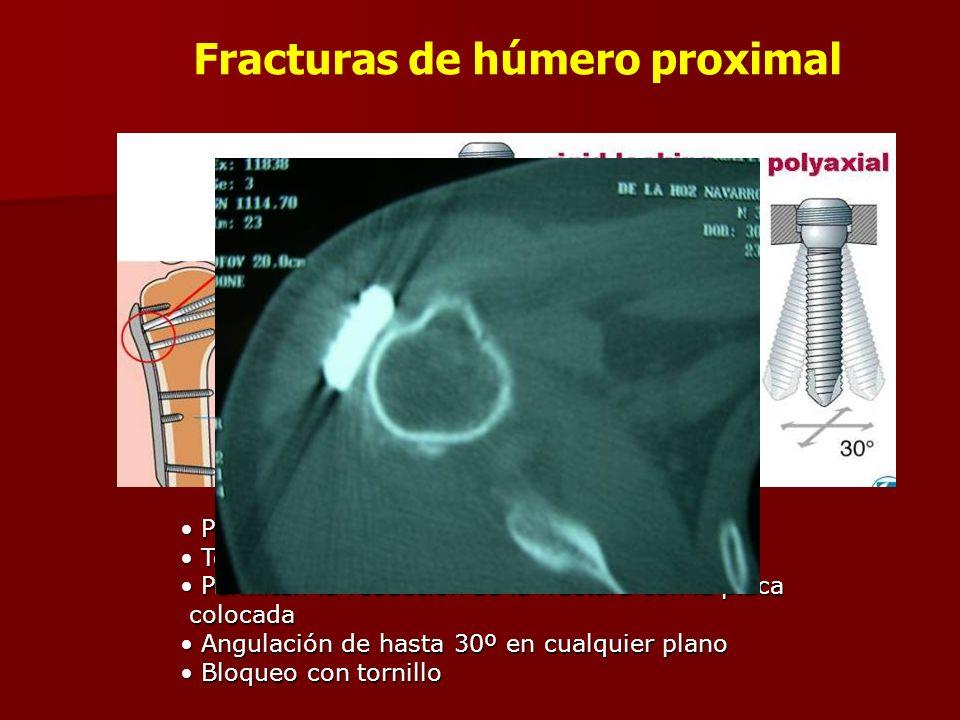 Fracturas de húmero proximal