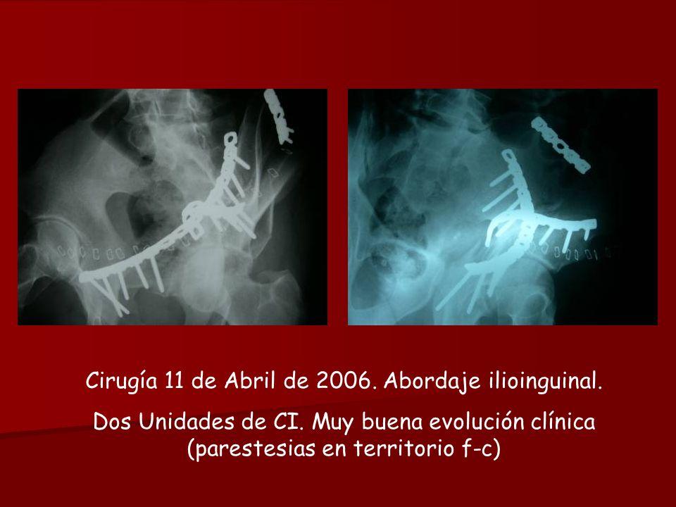 Cirugía 11 de Abril de 2006. Abordaje ilioinguinal.