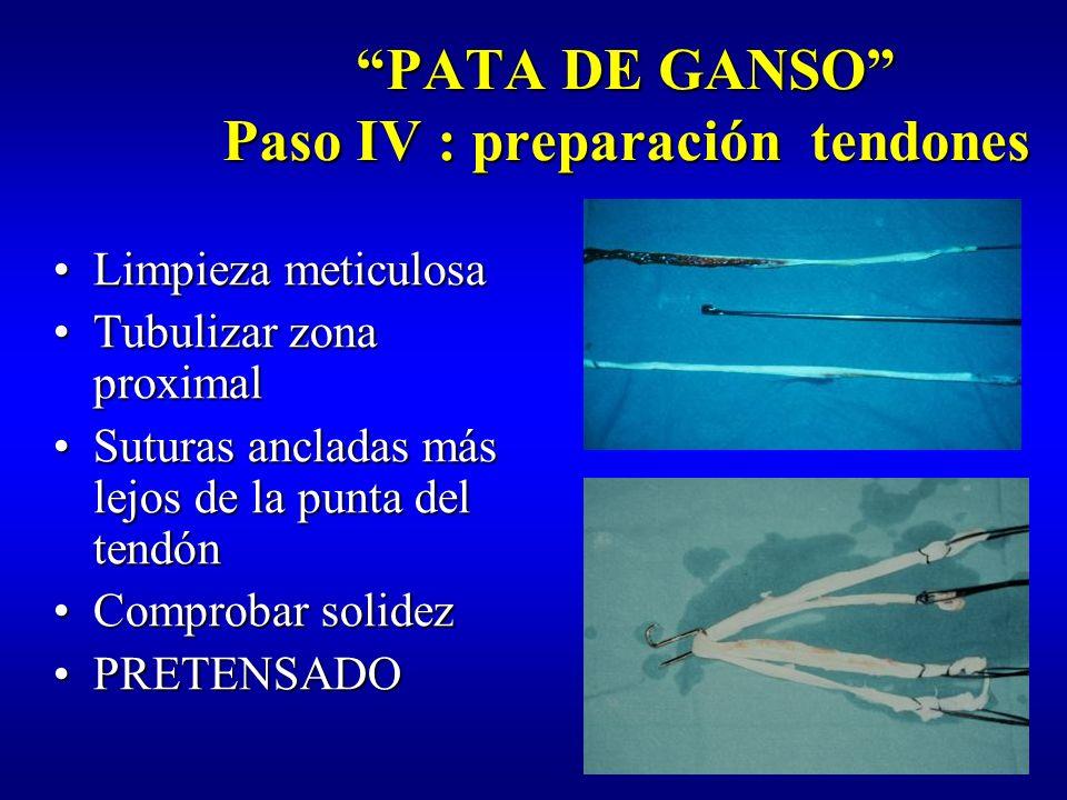PATA DE GANSO Paso IV : preparación tendones