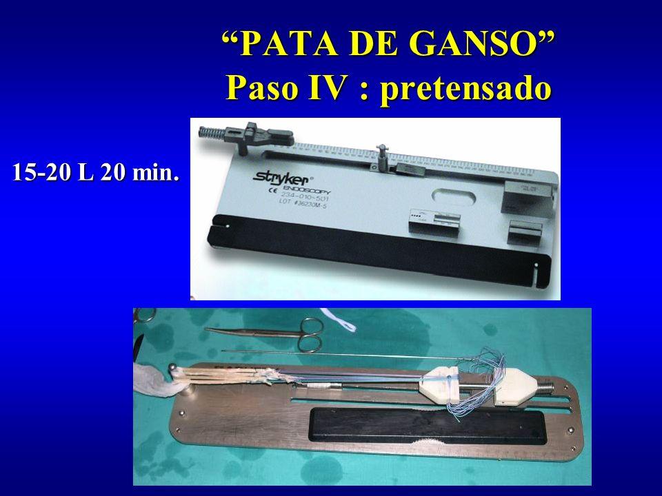 PATA DE GANSO Paso IV : pretensado