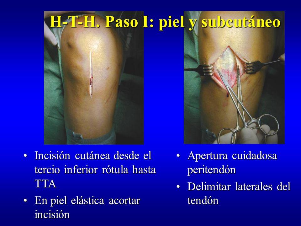 H-T-H. Paso I: piel y subcutáneo